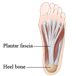 An illustration showing the plantar fascia ligament running the length of the foot from the heel bone to the toes.