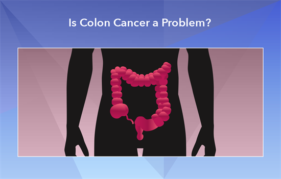 Prevent Colon Cancer My Doctor Online